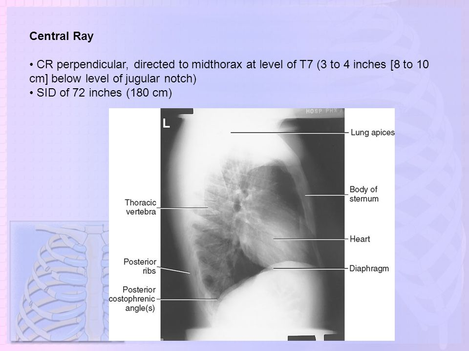 Central Ray • CR perpendicular, directed to midthorax at level of T7 (3 to 4 inches [8 to 10 cm] below level of jugular notch)